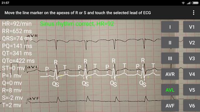 ECG Reader 2 screenshot 1