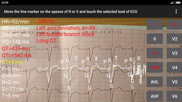 ECG Reader 2 screenshot 3
