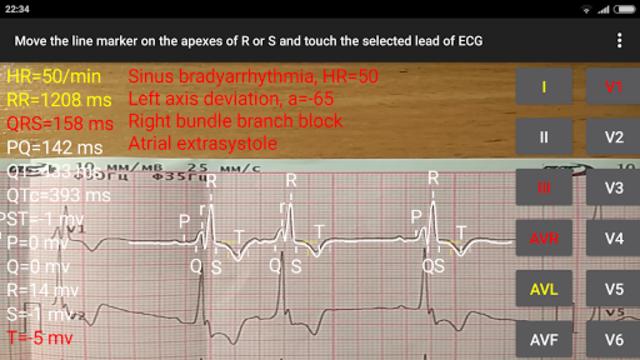 ECG Reader 2 screenshot 4