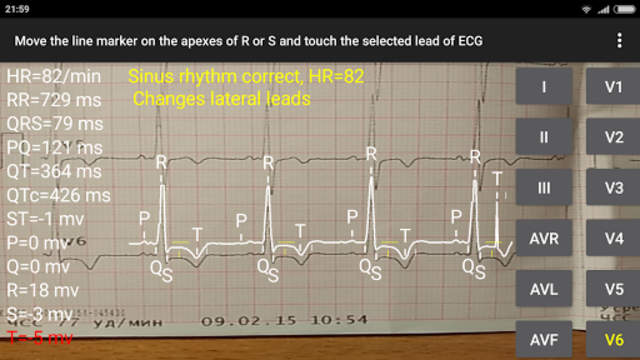 ECG Reader 2 screenshot 5