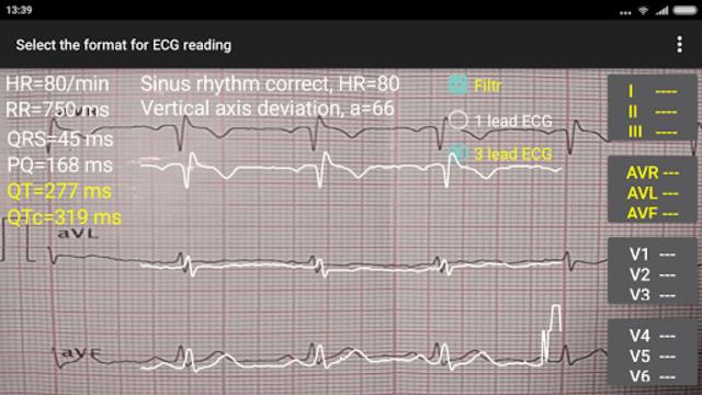ECG Reader 2 screenshot 6