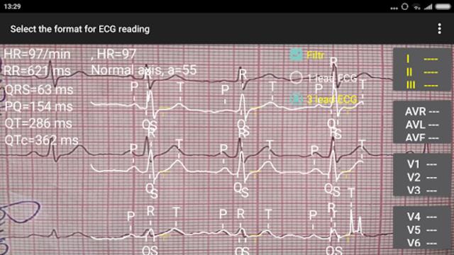 ECG Reader 2 screenshot 7