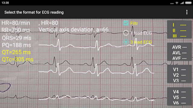 ECG Reader 2 screenshot 8