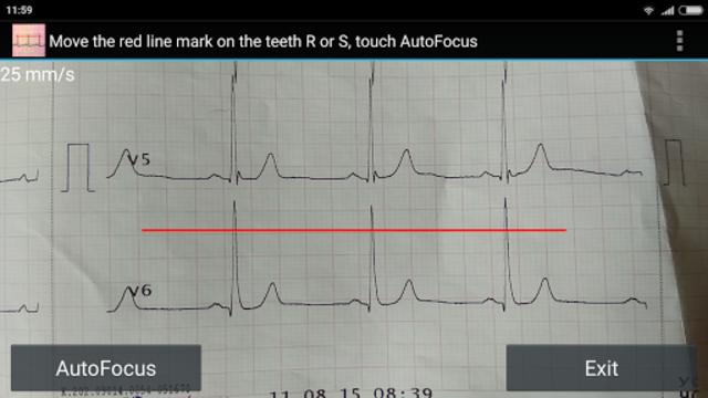 ECG Reader screenshot 1