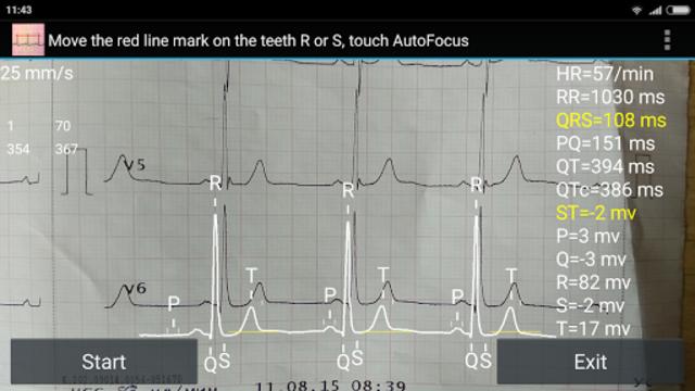 ECG Reader screenshot 2