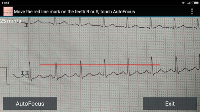 ECG Reader screenshot 3