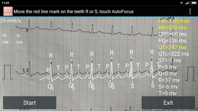 ECG Reader screenshot 4