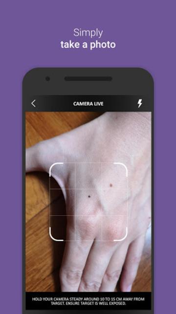 Medgic - Scan, Analyze and Detect Skin Problems screenshot 2