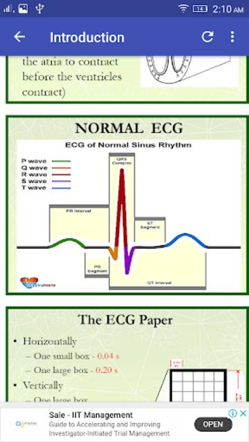 A to Z ECG Interpretation screenshot 2