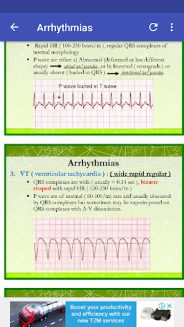A to Z ECG Interpretation screenshot 4