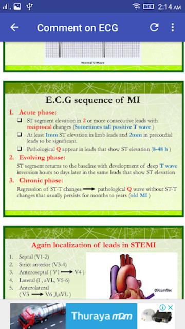 A to Z ECG Interpretation screenshot 5