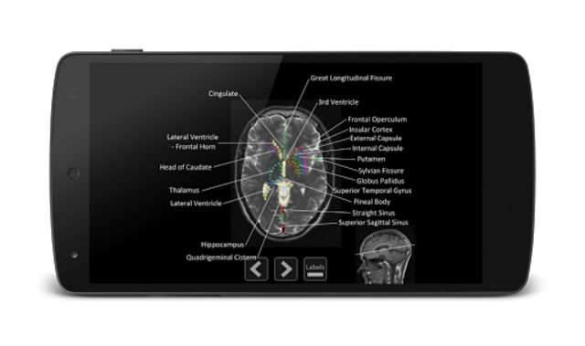 Atlas of MRI Brain Anatomy screenshot 5