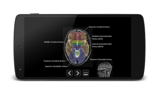 Atlas of MRI Brain Anatomy screenshot 6