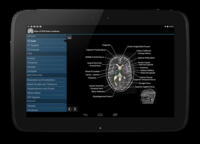 Atlas of MRI Brain Anatomy screenshot 7