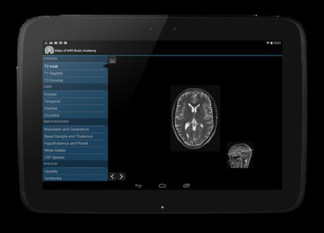 Atlas of MRI Brain Anatomy screenshot 8