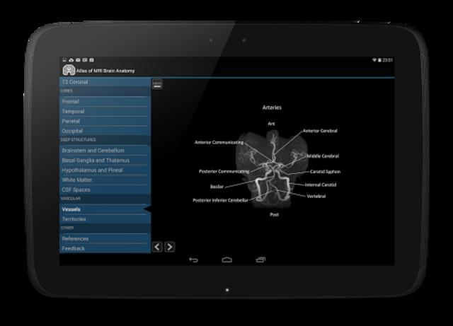 Atlas of MRI Brain Anatomy screenshot 9