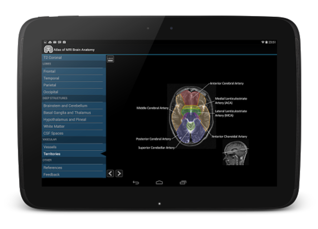 Atlas of MRI Brain Anatomy screenshot 10