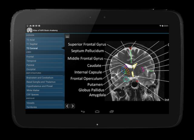 Atlas of MRI Brain Anatomy screenshot 11