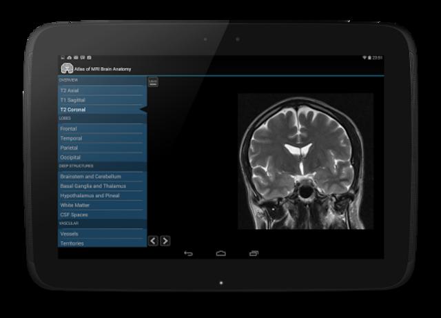 Atlas of MRI Brain Anatomy screenshot 12