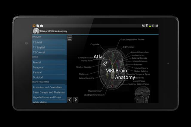 Atlas of MRI Brain Anatomy screenshot 13