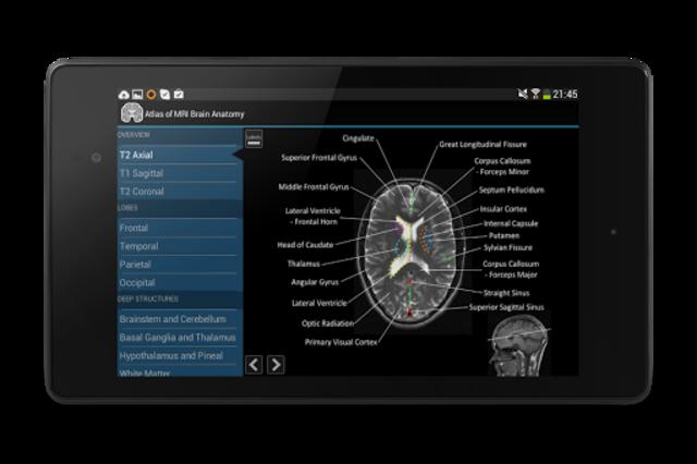 Atlas of MRI Brain Anatomy screenshot 14
