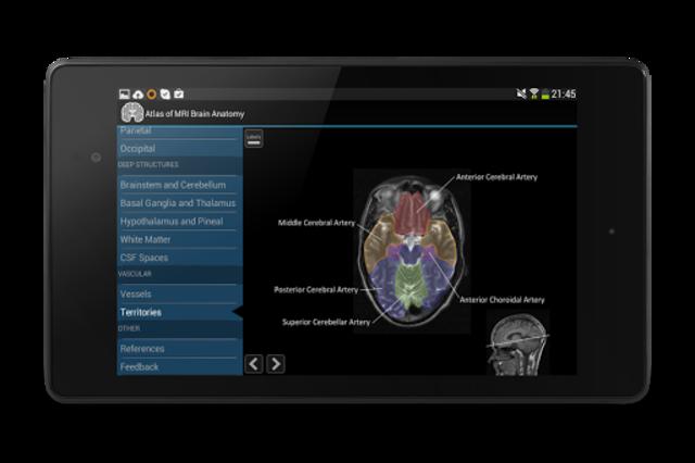 Atlas of MRI Brain Anatomy screenshot 17