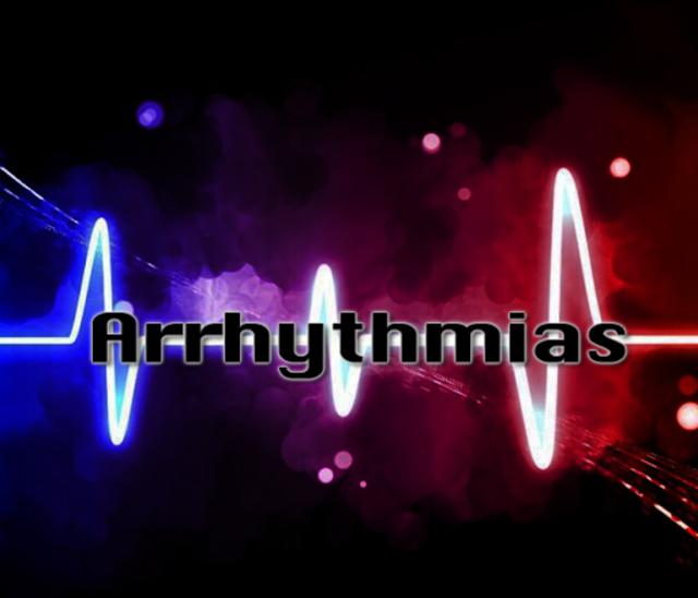 Arrhythmias and Dysrhythmias screenshot 1