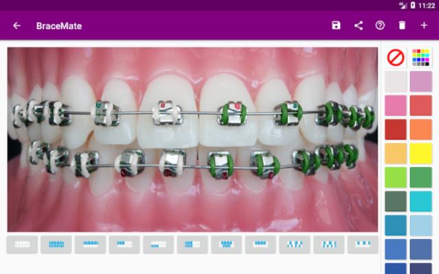 BraceMate screenshot 8