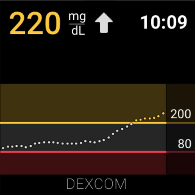 Dexcom G6 screenshot 10