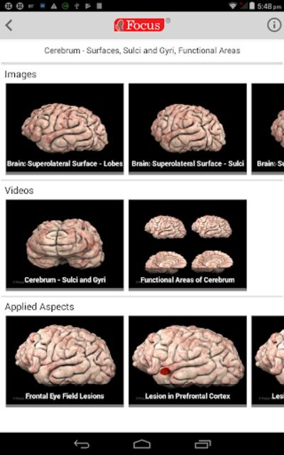 NEUROANATOMY - Digital Atlas screenshot 10
