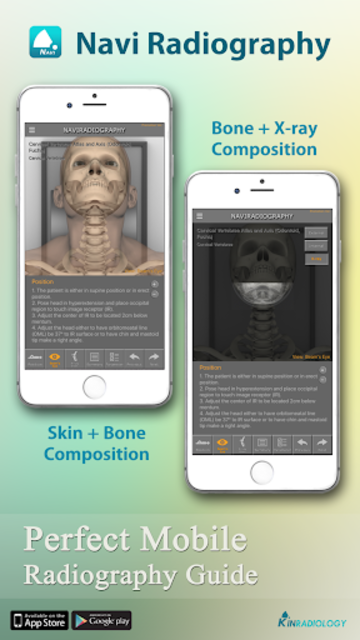 Navi Radiography Pro screenshot 4