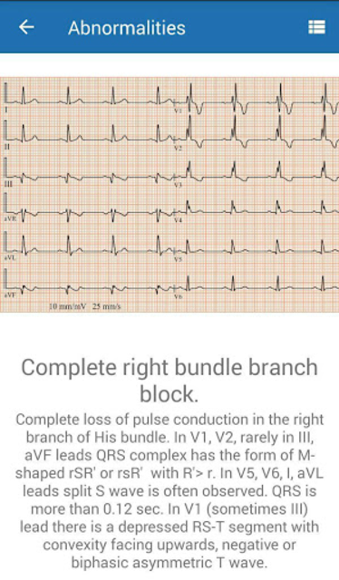 ECG  Interpretation and Tests. screenshot 3