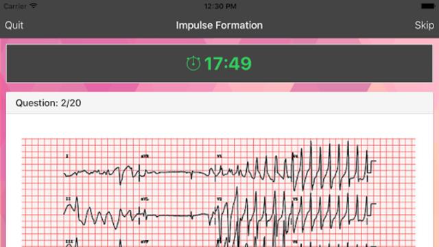 ECG Master: Quiz & Explanation screenshot 2