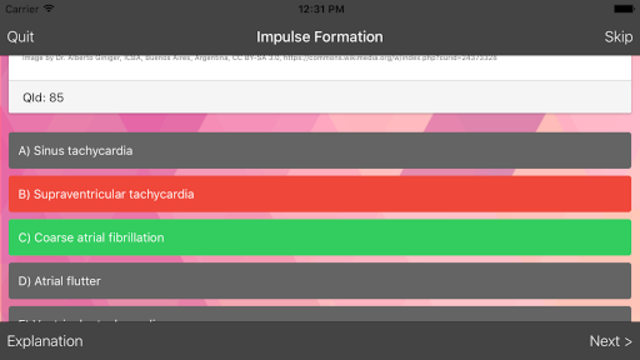 ECG Master: Quiz & Explanation screenshot 3