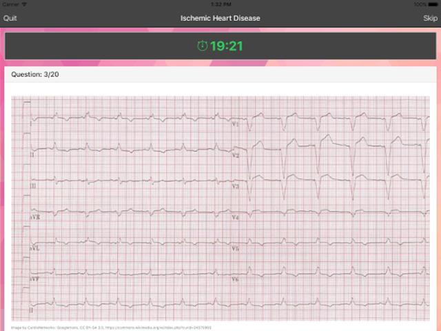 ECG Master: Quiz & Explanation screenshot 8
