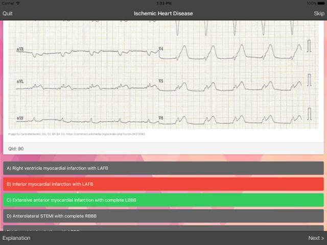 ECG Master: Quiz & Explanation screenshot 9