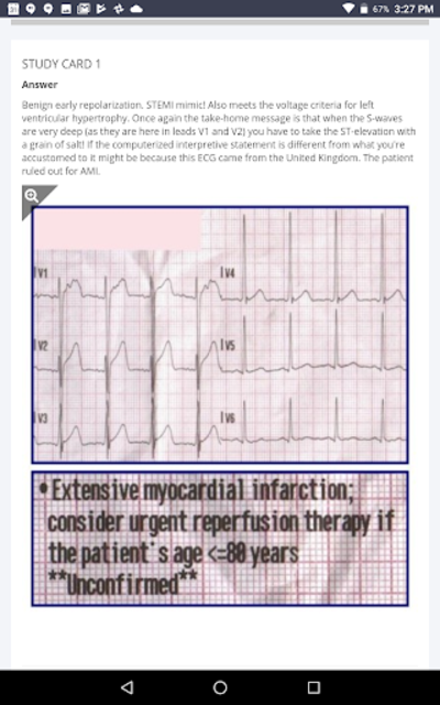 12-Lead ECG Challenge screenshot 5