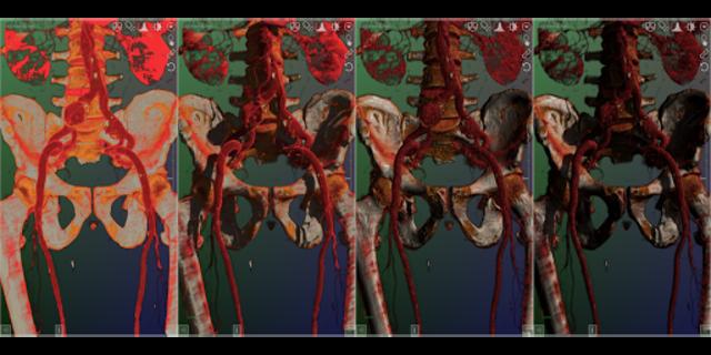 DroidRender - 3D DICOM viewer screenshot 11