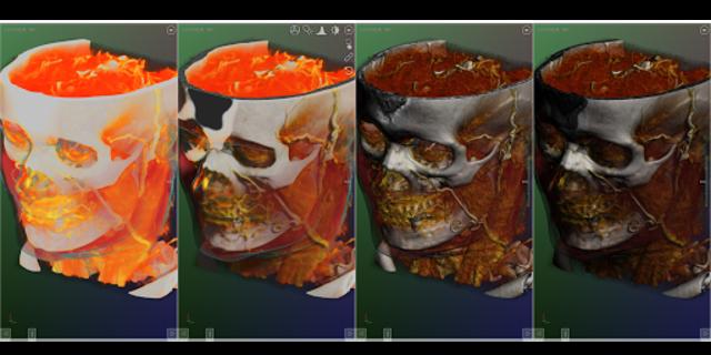 DroidRender - 3D DICOM viewer screenshot 15