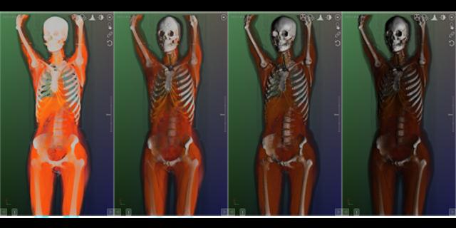 DroidRender - 3D DICOM viewer screenshot 16