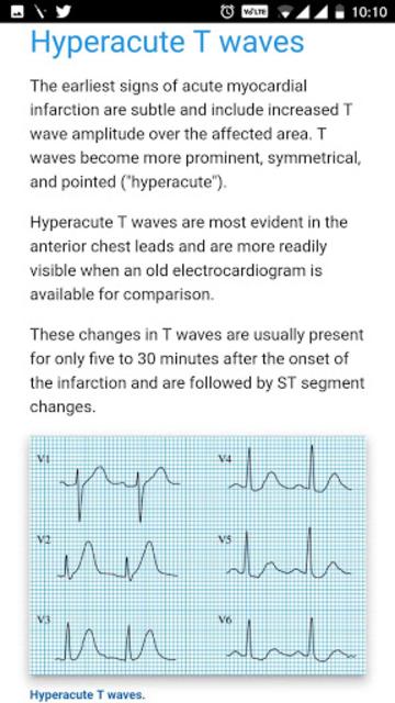 ECG Basics - Full screenshot 4