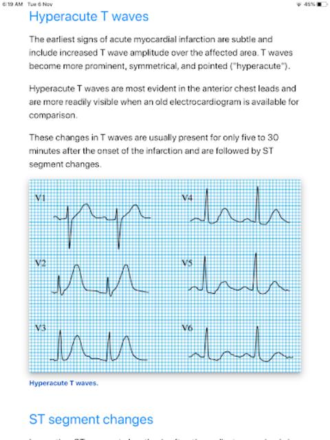 ECG Basics - Full screenshot 7