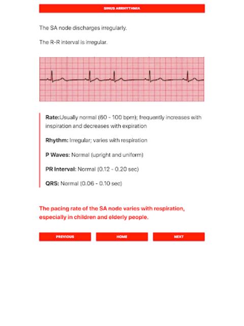 ECG FlashCards - Free screenshot 5