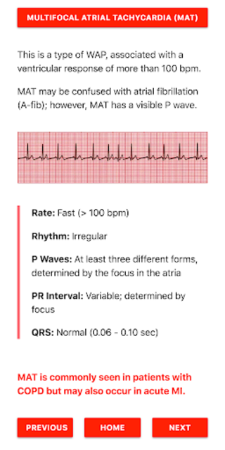 ECG FlashCards screenshot 2
