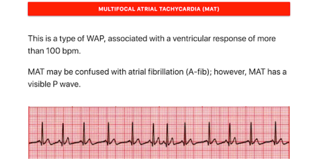 ECG FlashCards screenshot 3