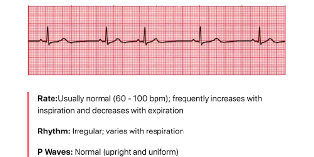 ECG FlashCards screenshot 4