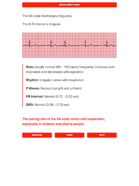 ECG FlashCards screenshot 5