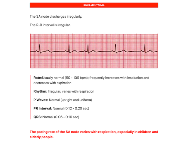ECG FlashCards screenshot 6