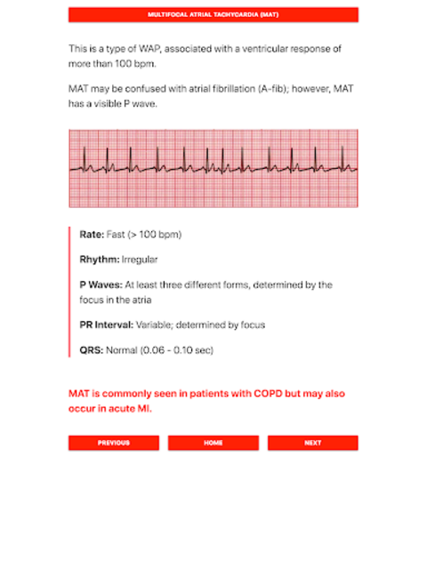 ECG FlashCards screenshot 8