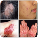 Icon for All Skin Diseases and Treatment- A to Z